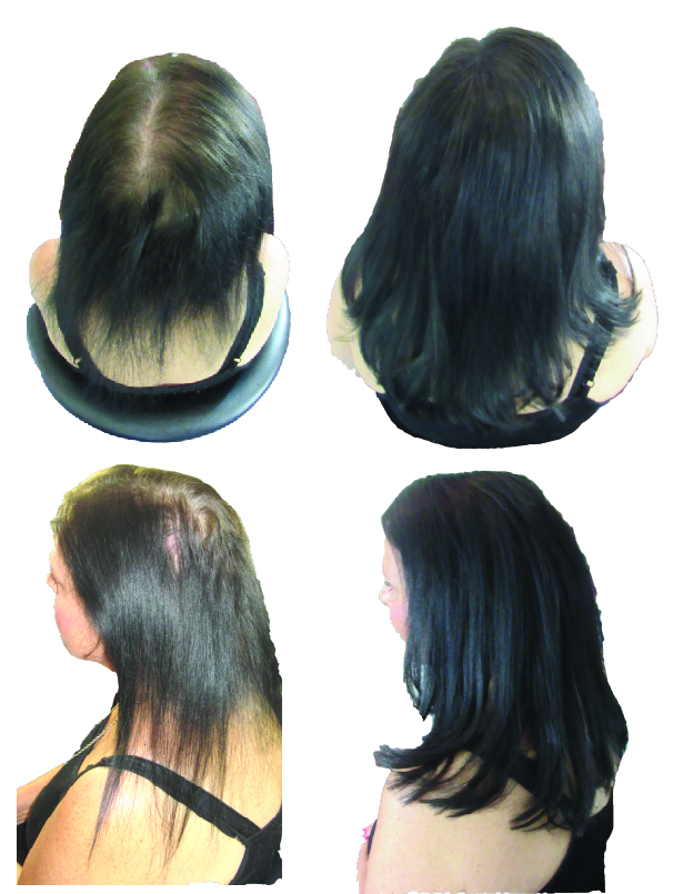 Top 10 Reasons Why Nano Link Hair Extensions Are A Great Solution